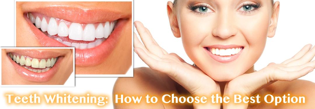 Mar-Anglis-Teeth-Whitening-header