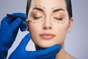 Elective Eyelid Surgery